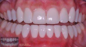 rechte tanden